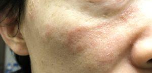 頬っぺた 湿疹