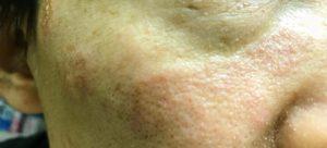 顔 湿疹 18日