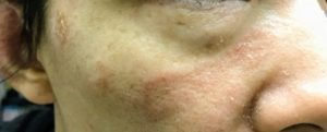 顔 湿疹 19日