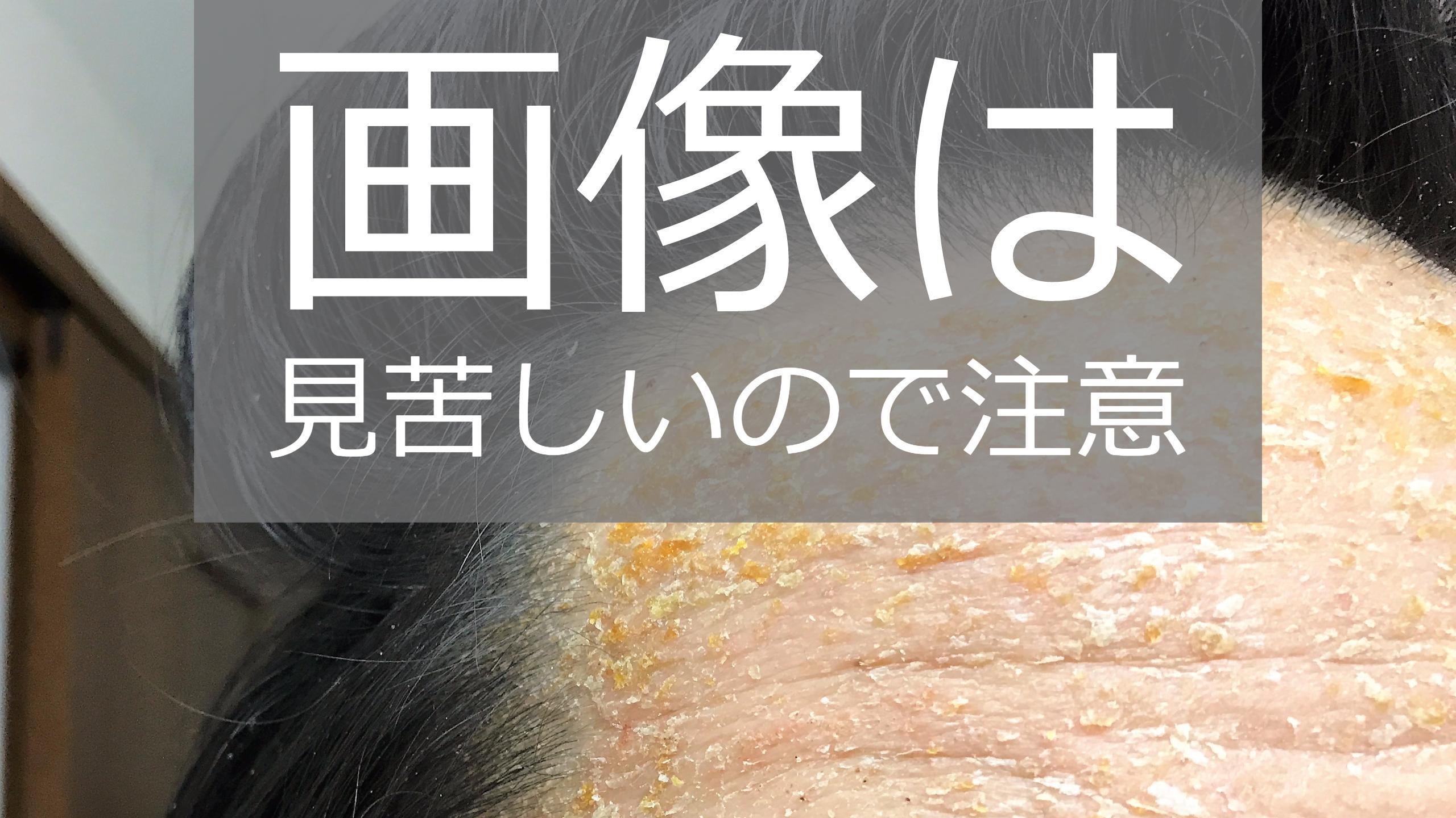 湿疹の状況