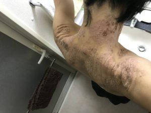 背中の湿疹引き