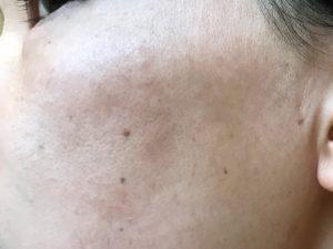 頬っぺたの湿疹